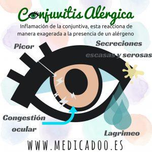 Síntomas de una Conjuntivitis Alérgica... y no te frotes los ojos que es peor!!!